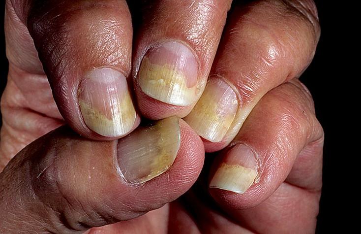 Заболевание ногтей: онихолизис