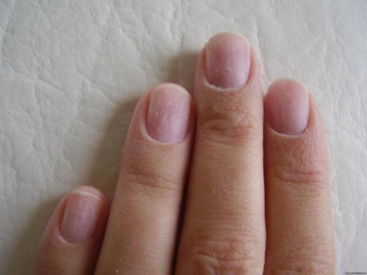 Как вернуть здоровье ногтям после снятия шеллака?1