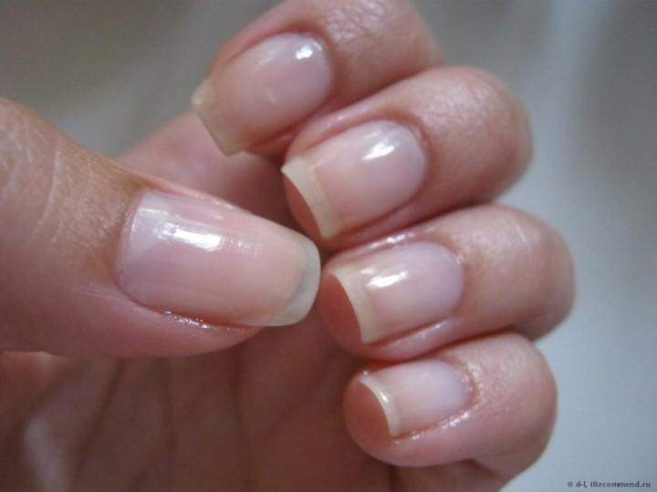Эфирные масла в уходе за ногтями3