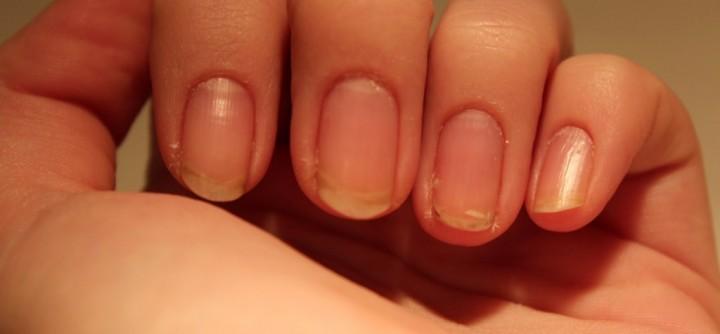 Ломкость ногтей – причины, лечение и профилактика2